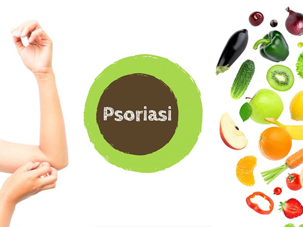 Mangia che ti passa…la Psoriasi! – Curare la Psoriasi con una alimentazione consigliata